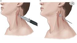 انواع جراحات و میزان دیه آنها -بخش دهم، دیه گردن و فک - همراه با فایل صوتی